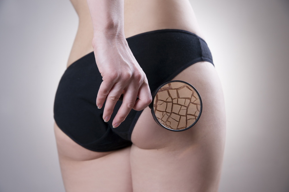 Cryotherapy for Cellulite Reduction